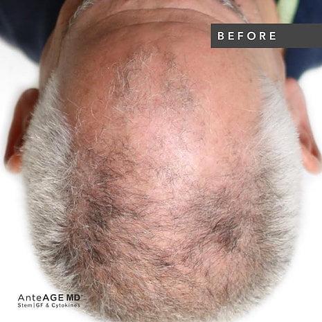 AnteAGE® Hair Restoration Solution